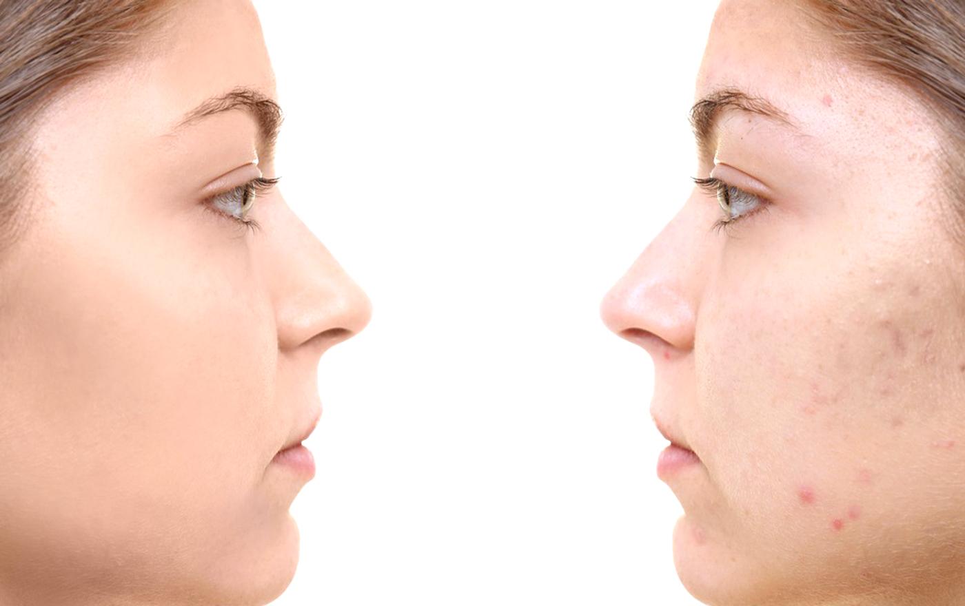 درمان جوش صورت و آکنه بهکمک ویتامین ها و مواد معدنی