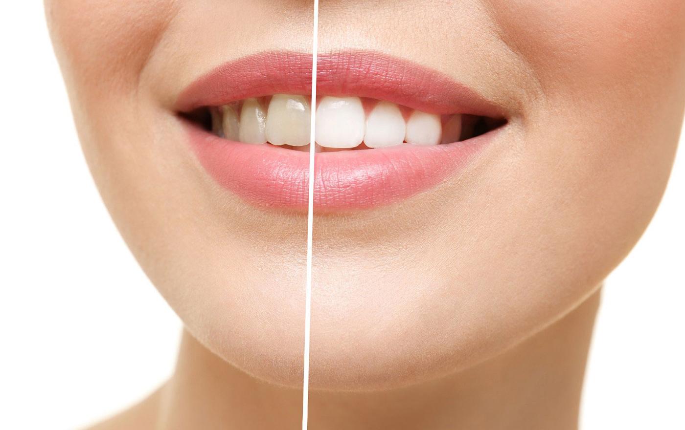 سفید کردن دندان تنها با خوردن 4 خوراکی طبیعی و سالم